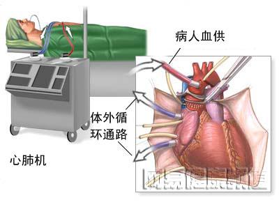 当进行手术时,需要切断心脏对身体的血液供应,所以需要应用心肺机将